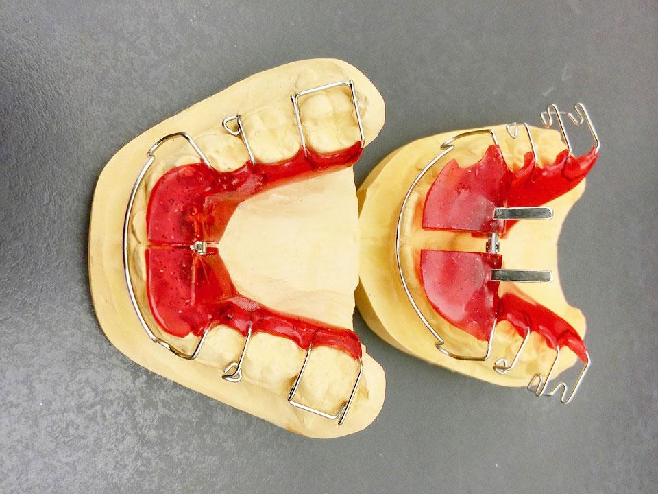 w-jakim-wieku-mozna-zakładać-aparat-ortodontyczny