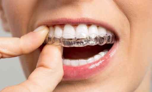 Nakładki prostujące zęby zaprojektowane i wykonane indywidualnie dla pacjenta.